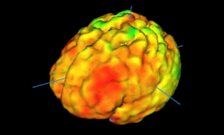 Study Suggests Brain Inflammation Is >> King S College London Study Finds Inflammation In The Brain Is