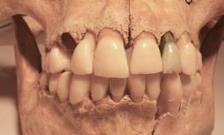 Roman-teeth