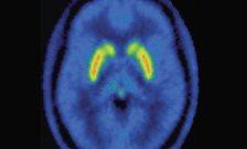 AJP-(2)---Dopamine-(Oliver-Howes,-Arisme)-Nov-2012