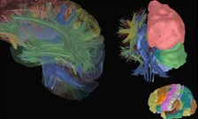 IoP Neuroscientists develop new 'Brain' App
