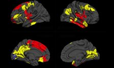 Brain scans could predict response to antipsychotic medication