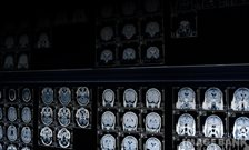 Could brain scans help predict schizophrenia?