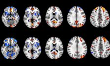 Brain inflammation linked to depression in multiple sclerosis