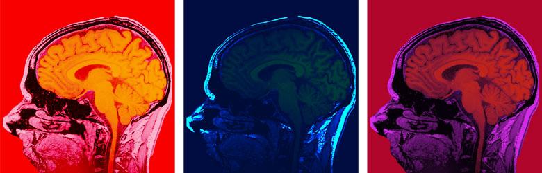 Psychiatry, psychology and neuroscience | Study at King's