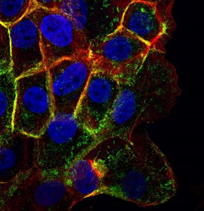ParsonsGrp_human epithelial cells(401x414)