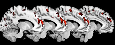 King S College London Psychopathy Linked To Brain