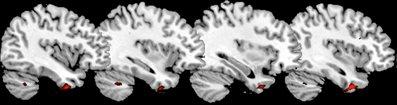anterior temporal cortex