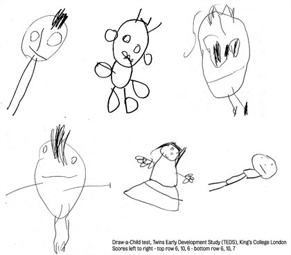 Kings College London Childrens Drawings Indicate Later Intelligence