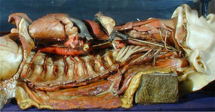 Example of the anatomical modelling of Joseph Townes showing the spine and organs of the lying figure
