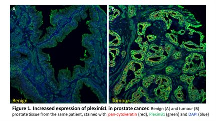 Prostate Cancer Research Centre Metastasis Group
