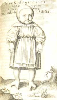 Infant with claws in place of feet, from 'Gammarologia, sive, Gammarorum'