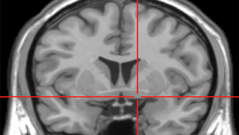 Parkinson's brain_news