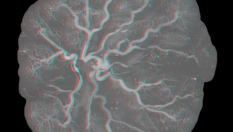 P51anaglyph_mip