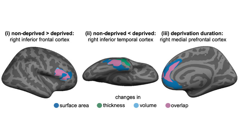 Fig2_regional_brain_maps