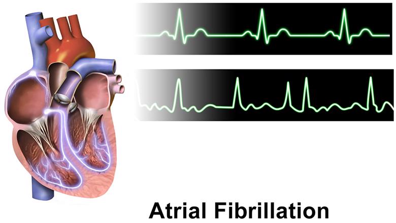 Diagram of atrial fibrillation and electrocardiogram (ECG) reading of normal and atrial fibrillation heartbeat