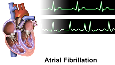 New funding supports research into holistic treatment for atrial fibrillation with other long-term health conditions